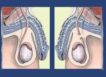 El mecanismo de la pompa para el aumento del pene